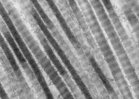 Fibers_of_Collagen_Type_I_-_TEM